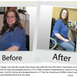 your-hcg-before-after_lona1